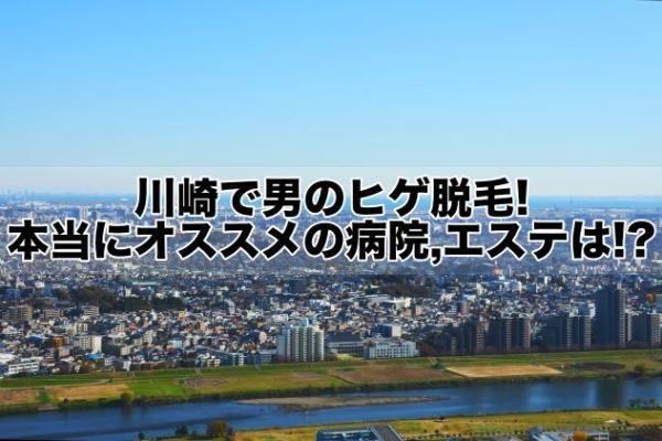 川崎で男のヒゲ脱毛!本当にオススメの病院,クリニック,エステは!?