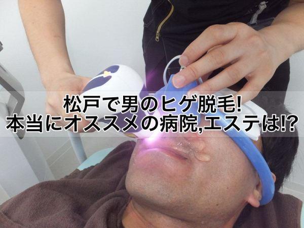 松戸で男のヒゲ脱毛!本当にオススメの病院,クリニック,エステは!?