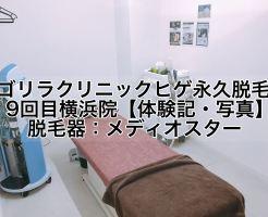 ゴリラクリニックヒゲ永久脱毛9回目横浜院【体験記・写真】脱毛器メディオスター