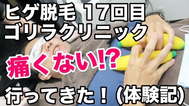 ゴリラクリニックヒゲ脱毛17回目に行ってきた!痛くなくビックリ!?笑 メディオスター :渋谷院