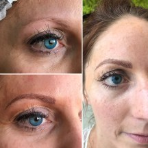 Brow progression