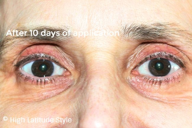 #beautyafter50 eye area after applying ZENMED essential eye serum for 10 days