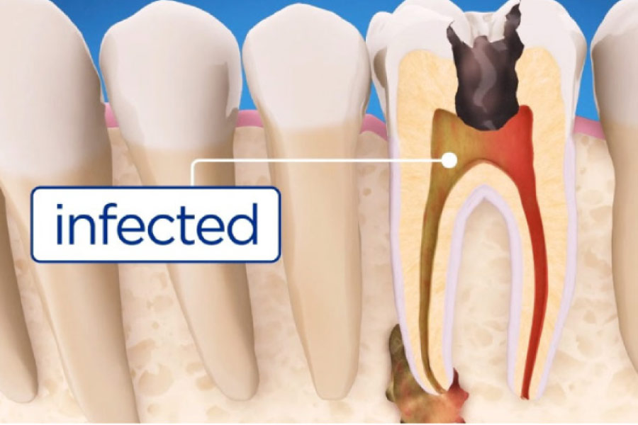 Before. During & After a Root Canal   High Point Dentistry   Illinois