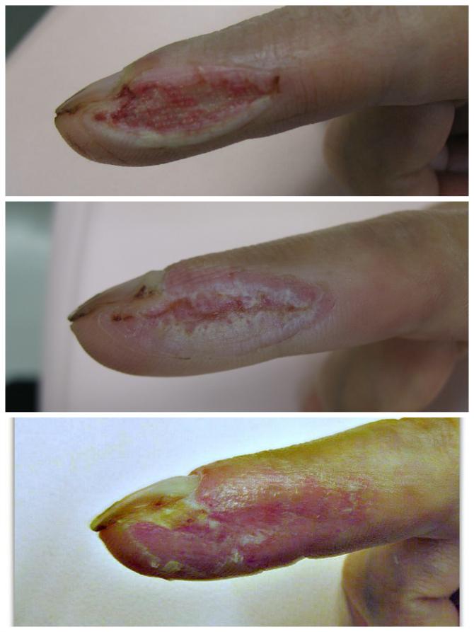パンスライサーで右第2指内側の皮膚を削げ落とす。 左:受賞後14日目、周囲より肉芽が上がってきた状態。中・右:受傷後から30日後。上皮が形成されてきています