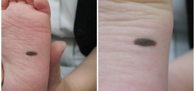 皮膚科医通信増刊号 11月12日は「イイヒフの日」 足の裏のホクロ無料検診があります。