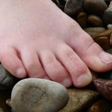 皮膚科医通信 Vol.18 爪白癬治療のいま