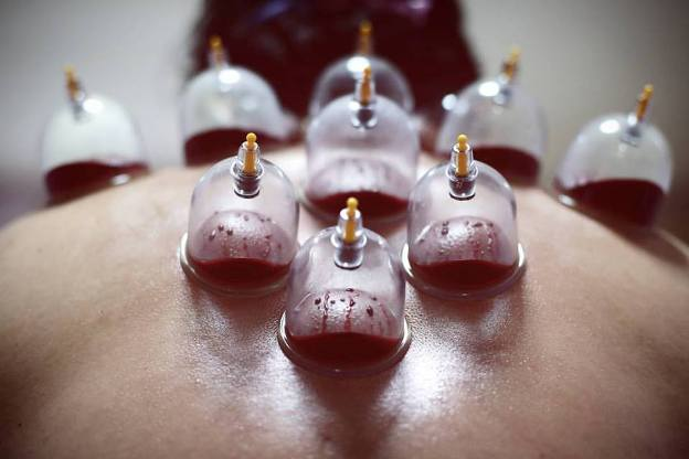 hijama-ventouse-cupping-therapie-naturel