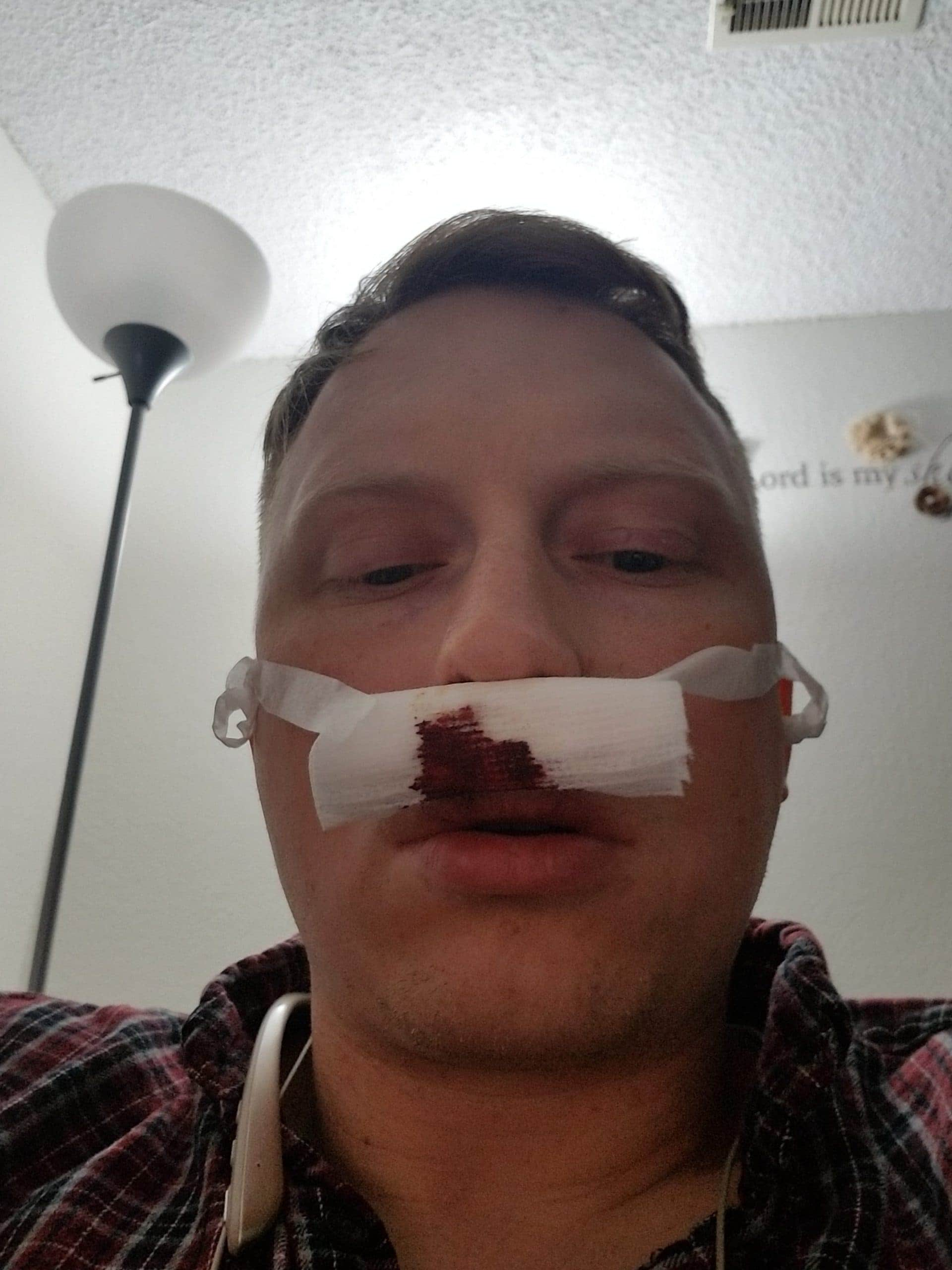 Post septoplasty and turbinectomy bandages