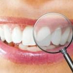 Zähne Bleaching günstig für zu Hause