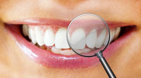 Schöne Zähne mit der Richtigen Zahnpflege Zahnbleaching zum selber machen Bild Copyright: Fotolia.de - Urheber: Jürgen Fälchle