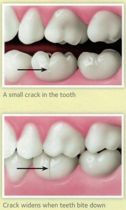 crack down side of tooth