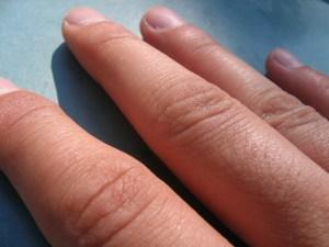 Tips Memilih Produk Skincare untuk Kulit Kering dan Cara Pakainya