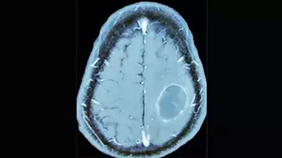 abscess formed in the patient's brain
