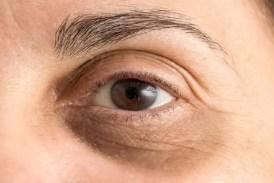 Remove Dark Circles: डार्क सर्कल (काले घेरे) हटाने के लिए आंखों पर लगाएं ये चीज