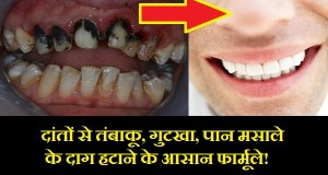 दांतों से तंबाकू, गुटखा, पान मसाले के दाग हटाने के 5 आसान घरेलू उपाय