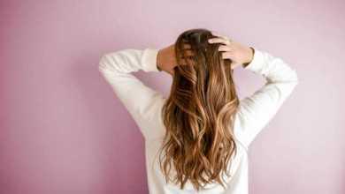 scalp psoriasis