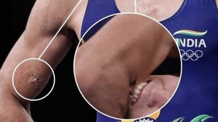 रवि दहिया दाँत ओलंपिक