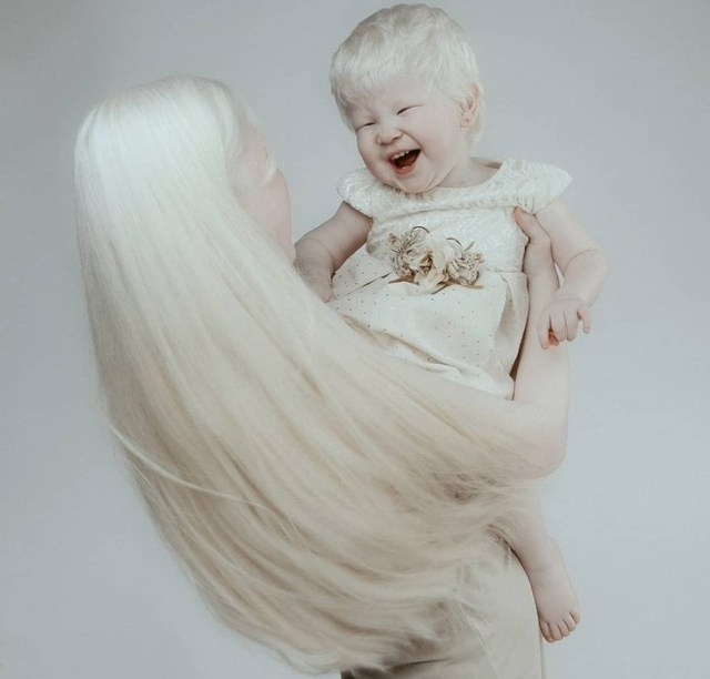Albino Sisters Born 12 Years Apart Excite the Internet With Their Photos