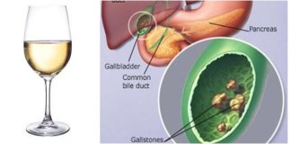 gallstone remedies