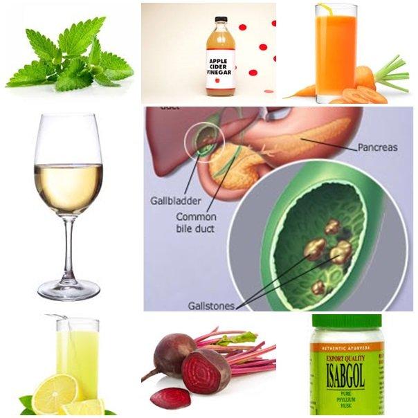 gallstone remedies