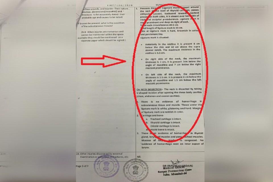 सुशांत के गले की हड्डी नहीं टूटी थी, पोस्टमार्टम रिपोर्ट में हुआ अब ये बड़ा खुलासा