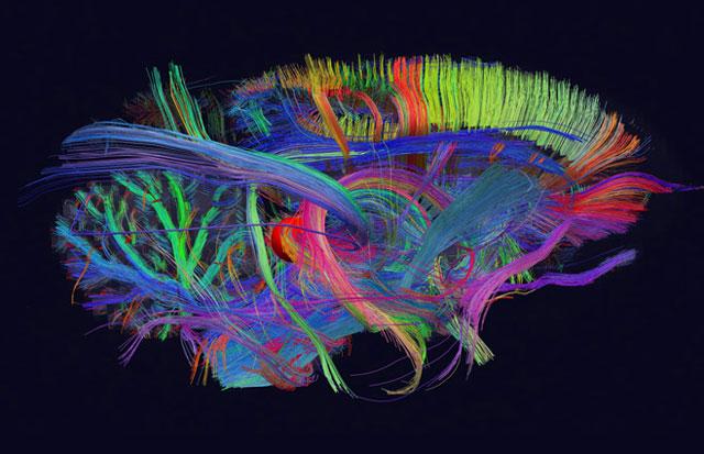 Imagen en 3D de algunas de las conexiones neuronales de un Mono Nocturno