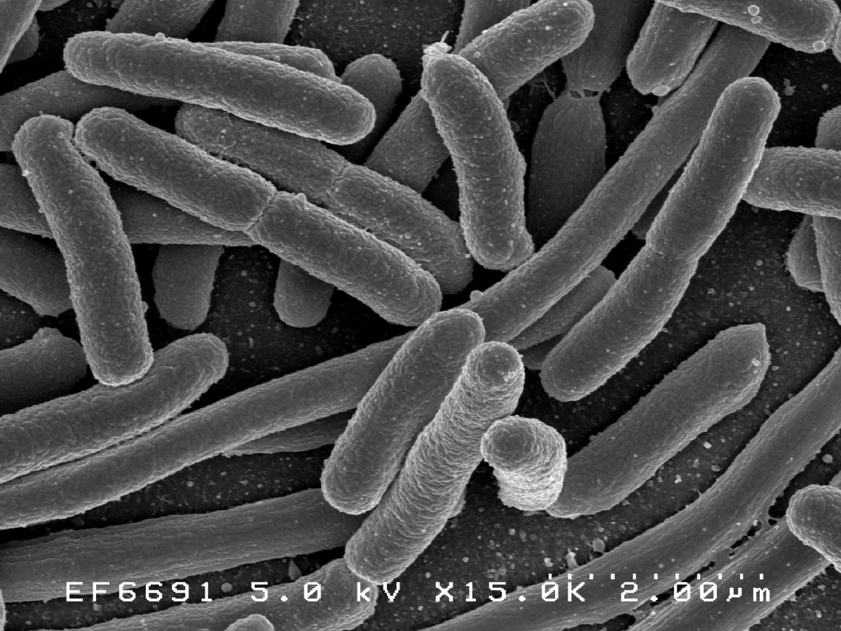 Credit:Ê Rocky Mountain Laboratories, NIAID, NIH Scanning electron micrograph of Escherichia coli, grown in culture and adhered to a coverslip