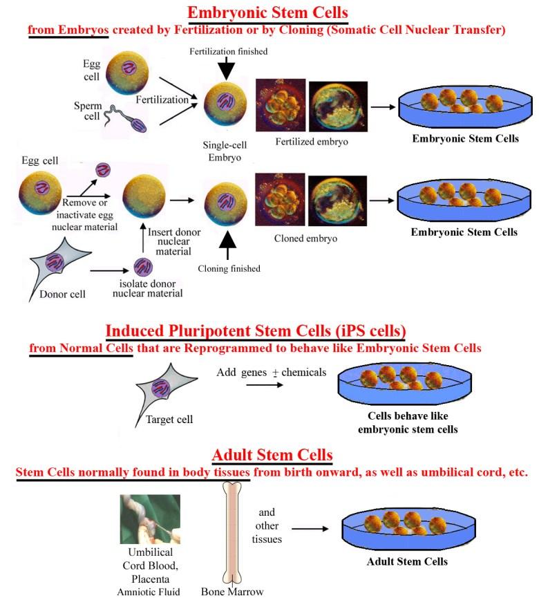 Células madre pluripotenciales inducidas