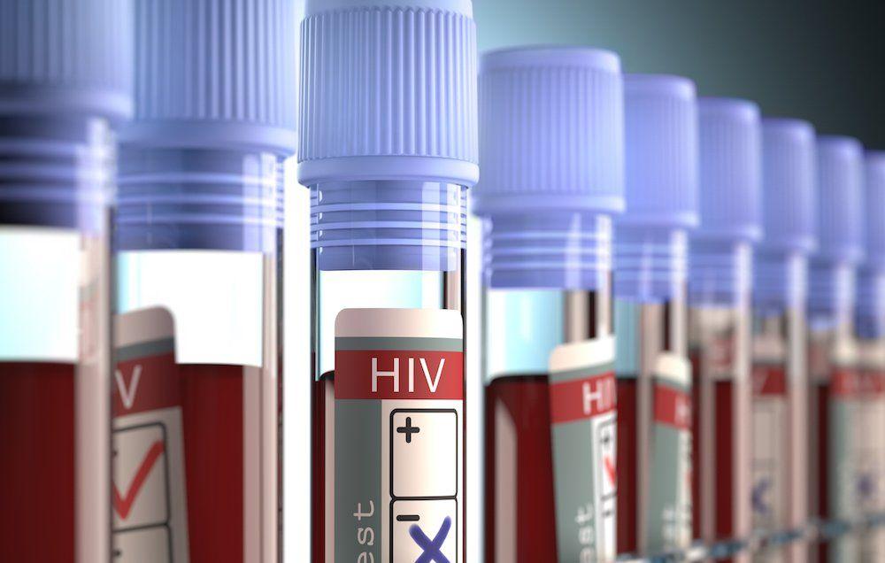 hiv test malaysia