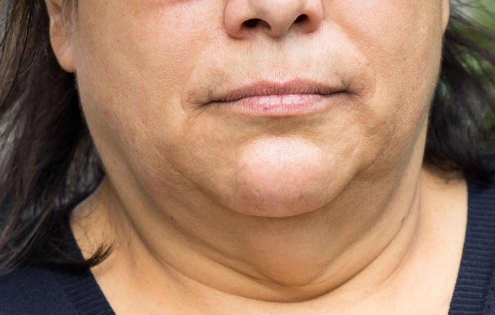 How To Lose Weight In Your Face: What You Can Do About ...