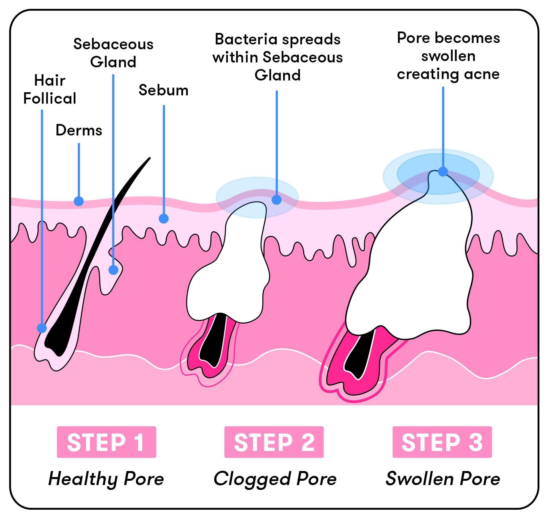 medium resolution of diagram of acne