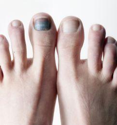 diagram of big toe pain [ 2125 x 1411 Pixel ]