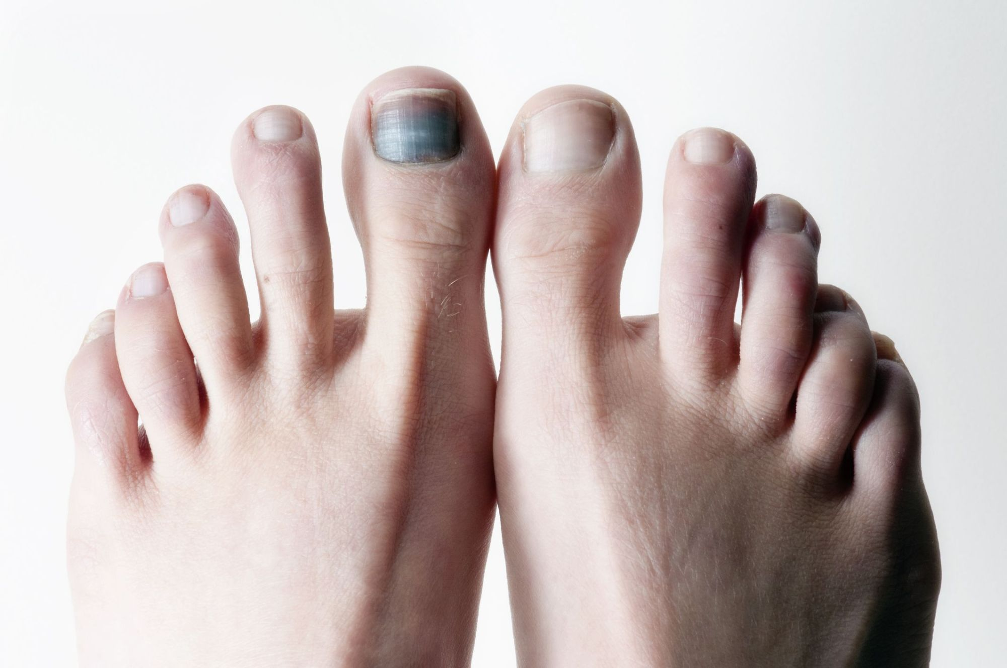 hight resolution of diagram of big toe pain