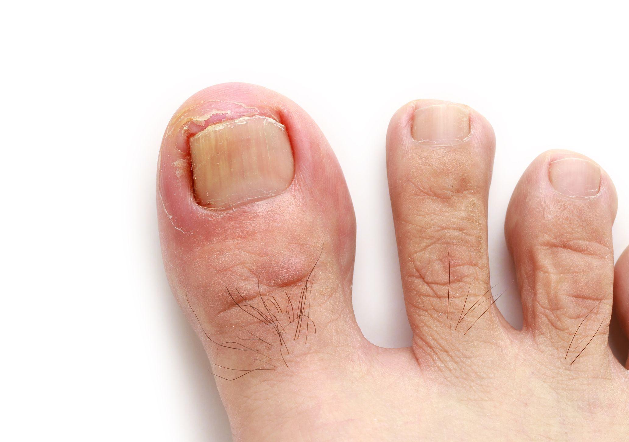 rid of ingrown toenail