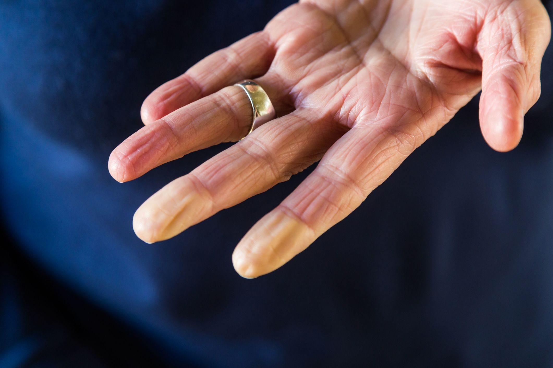 Numbness in Fingers & Hands - 13 Causes of Tingling in Hands