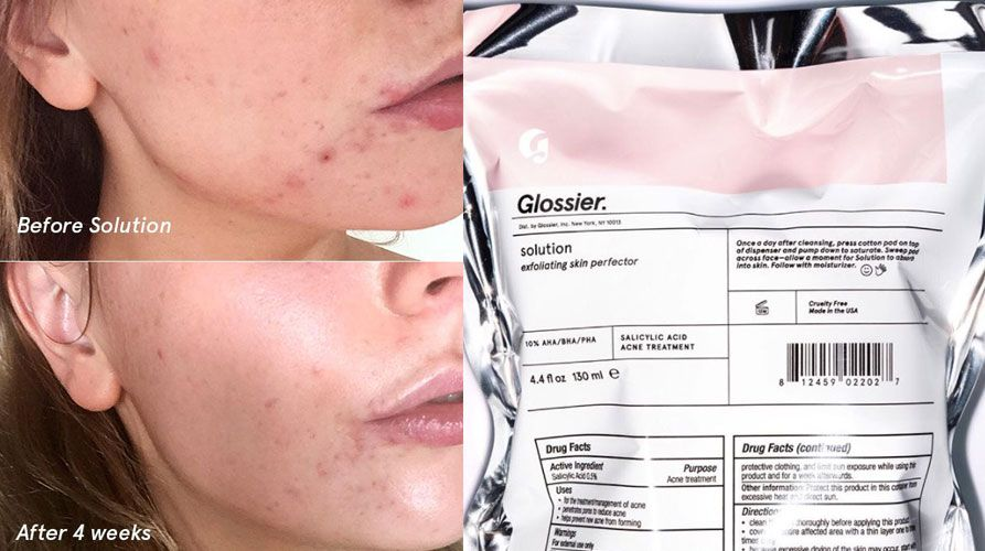 Glossier Solution Exfoliating Skin Perfector - Glossier is launching a new acne-busting product