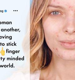 pimple diagram face [ 2000 x 1000 Pixel ]