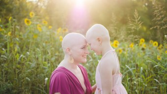 This Cancer Survivor & Her Daughter Posed For A Bald Photo Shoot