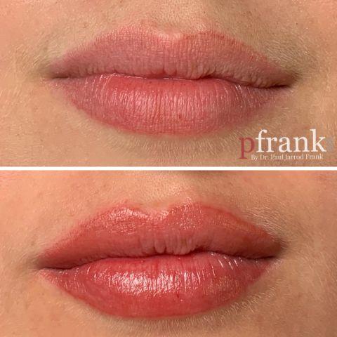 Permanent Lip Blush Tattoo