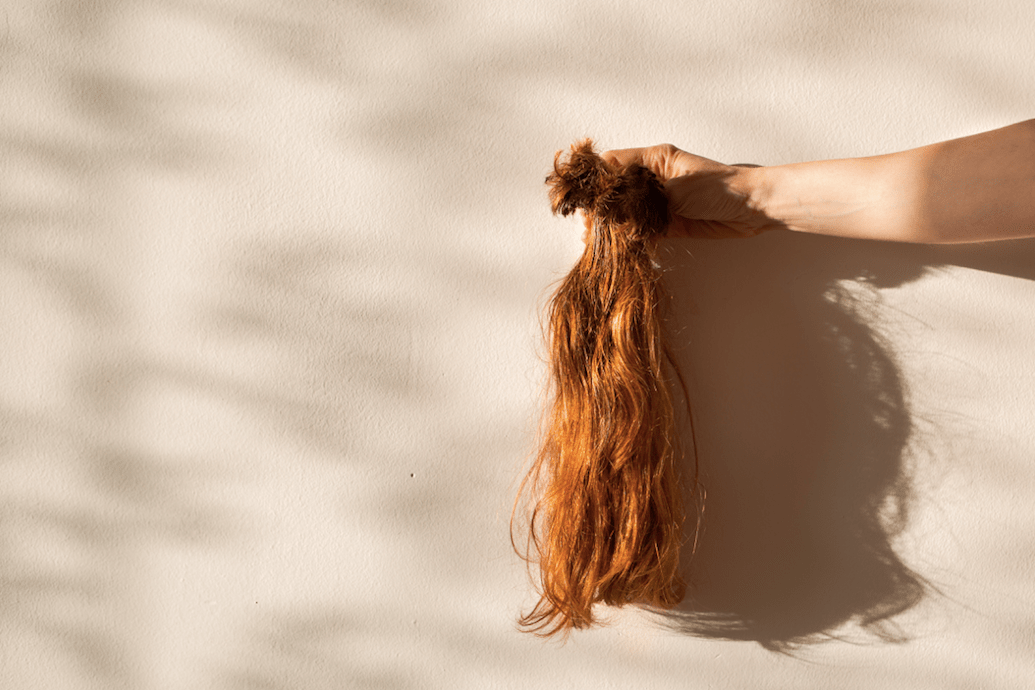 Female Hair Loss Five Women On What Causes Hair Loss And Their