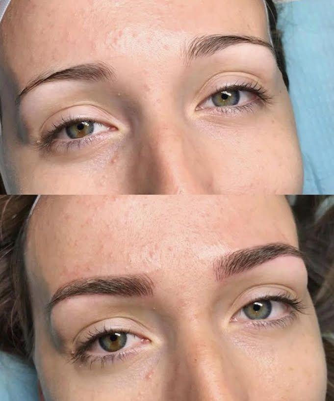 Best Eyebrows Near Me : eyebrows, Eyebrow, Microshading?, Cost,, Results,, Photos, Treatment