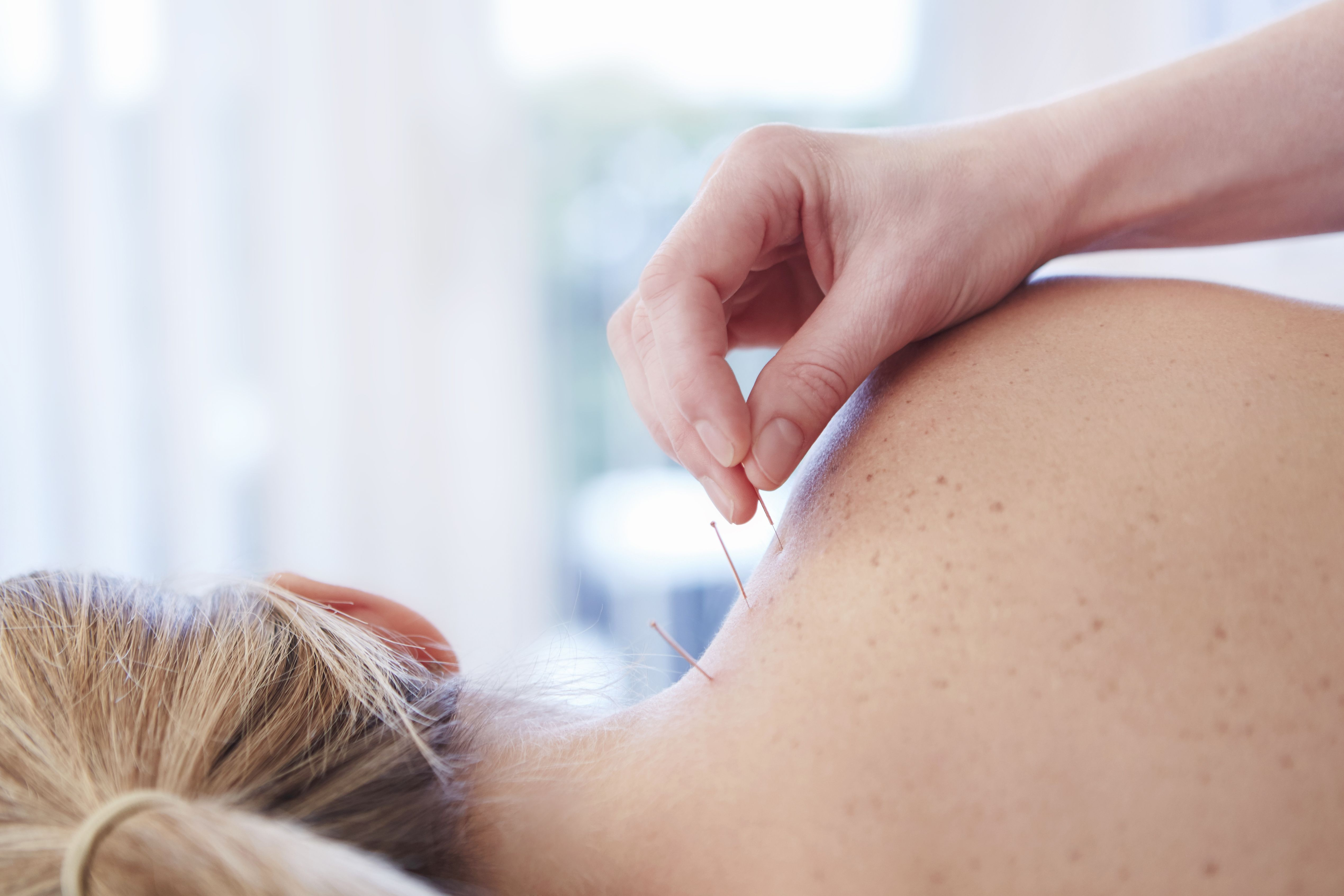 could acupuncture ease the