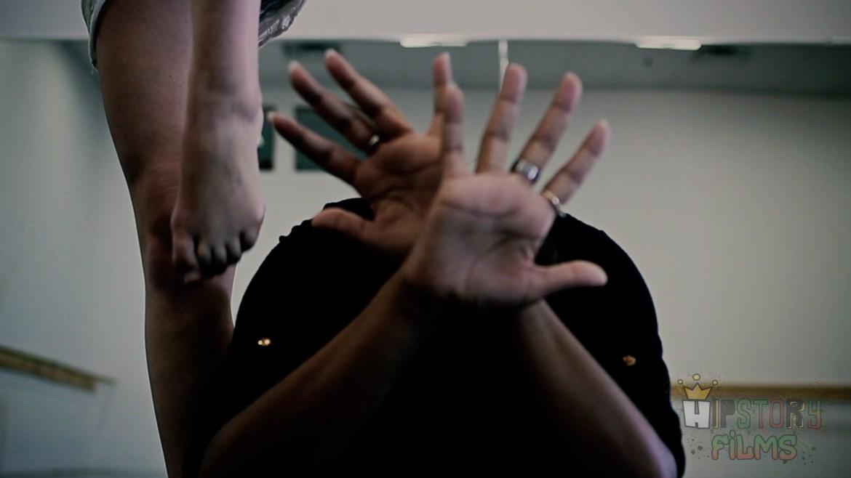 Vitiligo [Official Trailer]