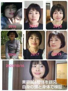 美容鍼変化