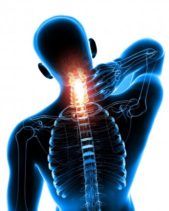 Omurga Hastalıkları (Servikal Spondiloz)