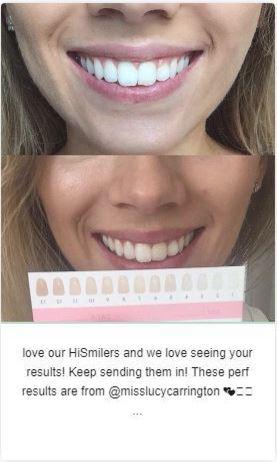 HiSmile - система отбеливания зубов