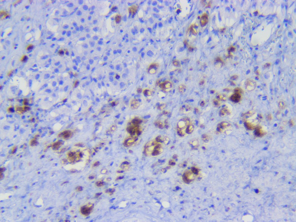 Leydig cell tumor CD8