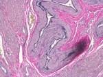 Human Uterus Verhoeff Van Gieson 20x