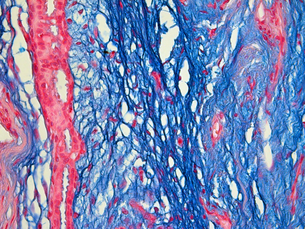 microscopic picture of breast stained with alcian blue
