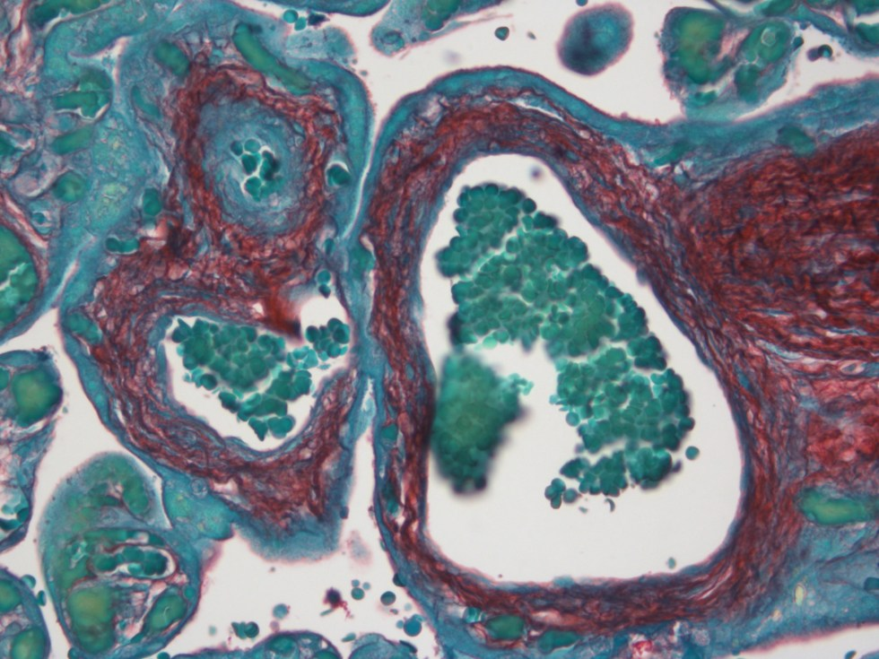 Human placenta stained